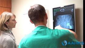 Hip pre-surgery exam